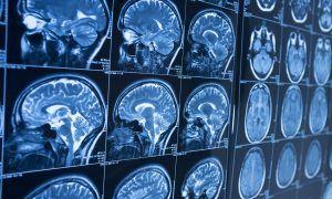 AI Alzheimer