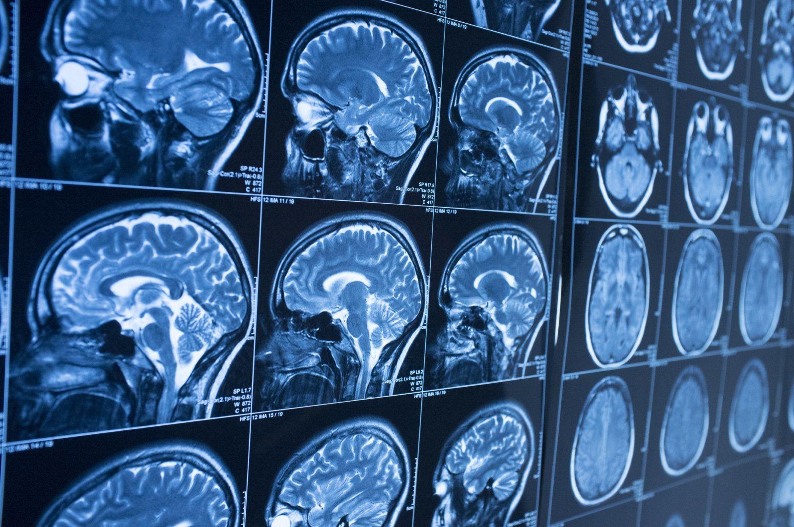 Alzheimer, l'intelligenza artificiale può diagnosticarlo dieci anni prima