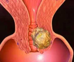 Cancro alla cervice uterina, il vaccino più promettente è realtà 1