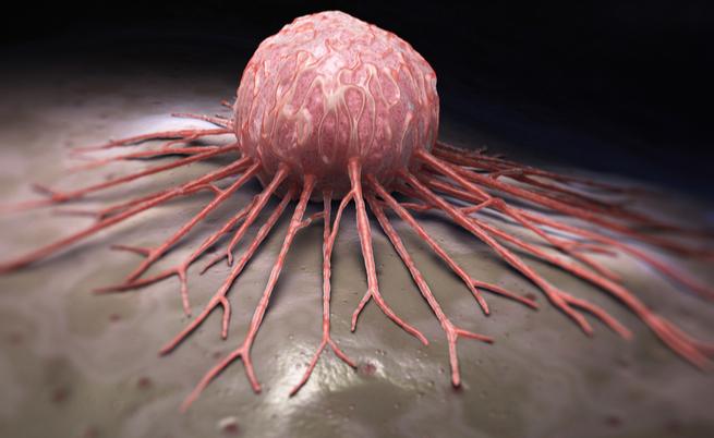Cancro alla cervice uterina