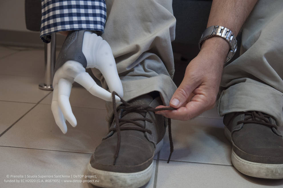 L'Italia impianta la prima mano robotica permanente che ridona il tatto