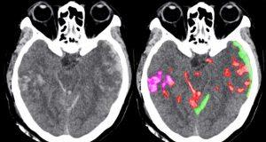 Intelligenza artificiale aiuta i dottori nella diagnostica delle emorragie