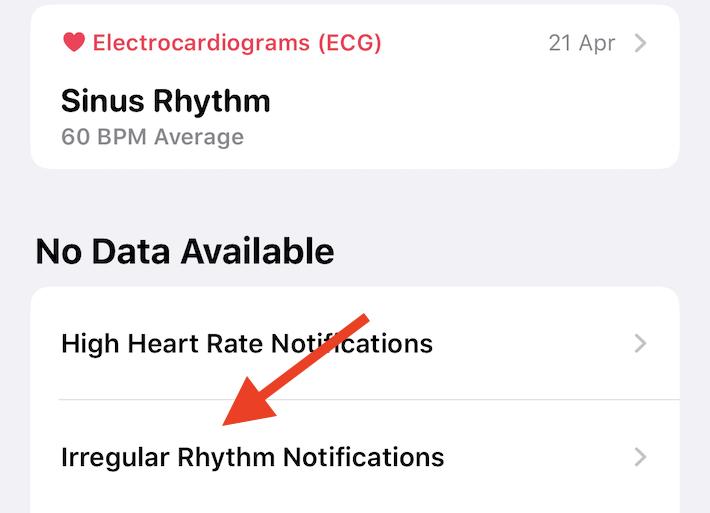 iphone notifiche apple watch ritmo cardiaco irregolare